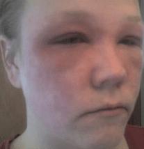 Eczema des paupières : un calvaire