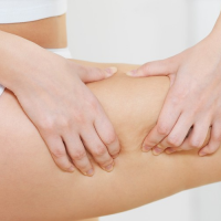 En finir avec la cellulite